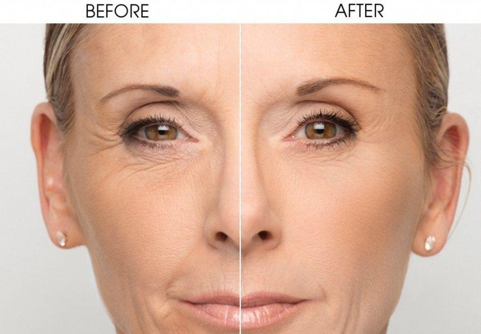 Medicina estética: Cómo atenuar las arrugas que envejecen al rostro