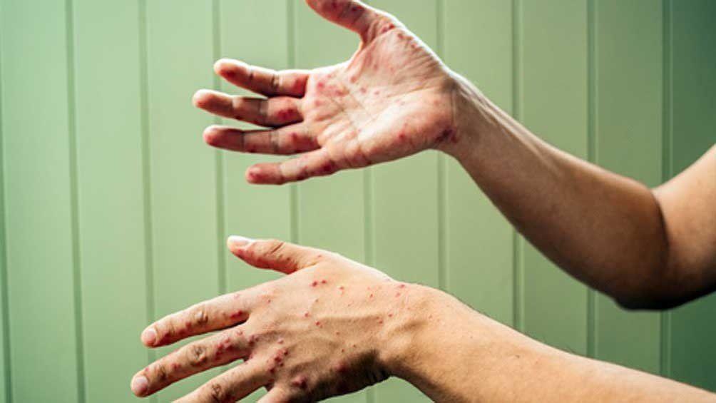 Alerta por un nuevo caso de sarampión en Rosario de Santa Fe