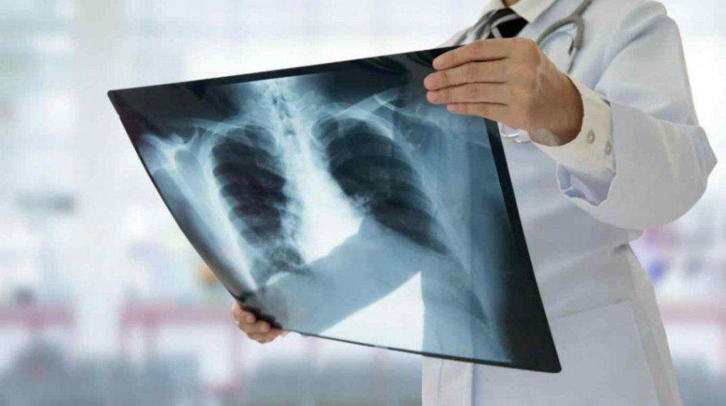 La tuberculosis aumenta en la Argentina: un joven de 18 murió en el hospital Muñiz y enciende la alarma