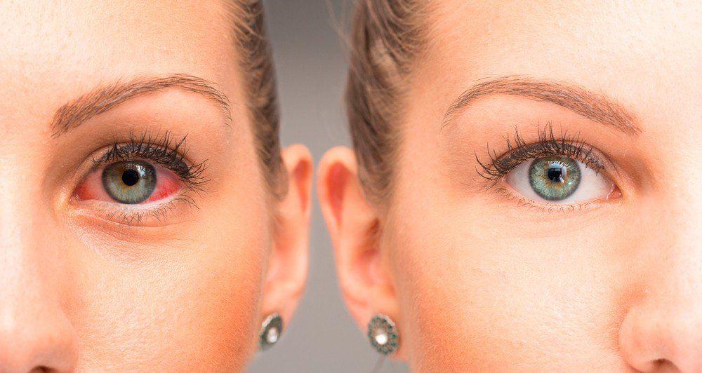 La enfermedad en los ojos que afecta a 300 mil argentinos es la uveítis y causa dolor y pérdida de visión
