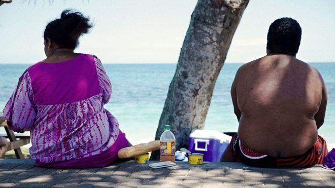 La epidemia de obesidad avanza y desvela a los especialistas