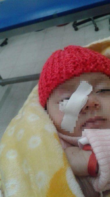 Apedrearon un colectivo que venia del sur de la provincia y una bebé resultó herida