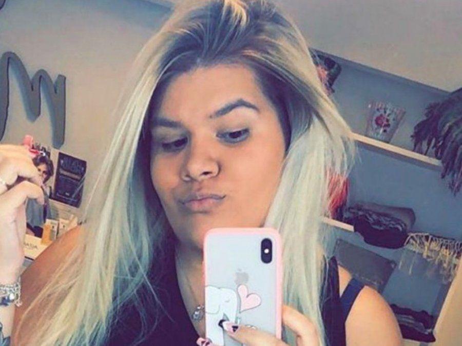 Morena Rial se sometió a una renovación facial