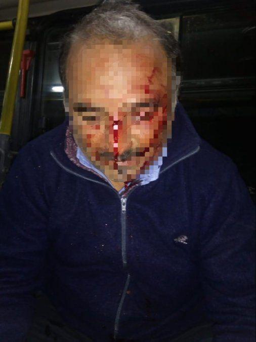 Asaltan a un chofer de ómnibus en Miguel Araoz al 300
