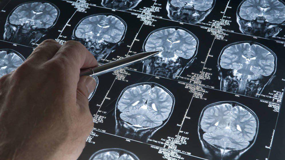 Identificaron un procedimiento para evitar la generación del Alzheimer