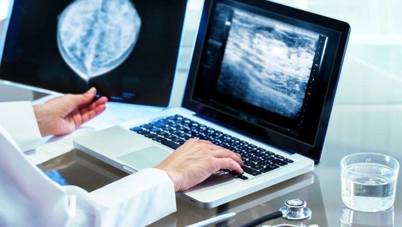 Cáncer de mama: ¿qué son los tratamientos neoadyuvantes?