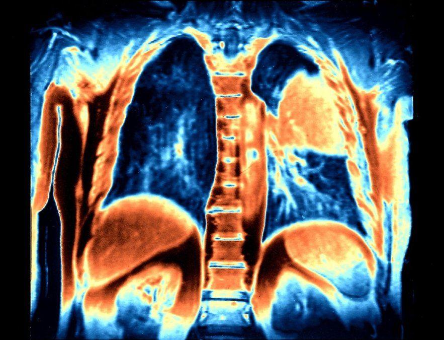 Los expertos en oncología indican que estos hallazgos deberían cambiar la práctica médica de inmediato.Una imagen de resonancia magnética a color muestra tumores cancerígenos en un pulmón (de color naranja