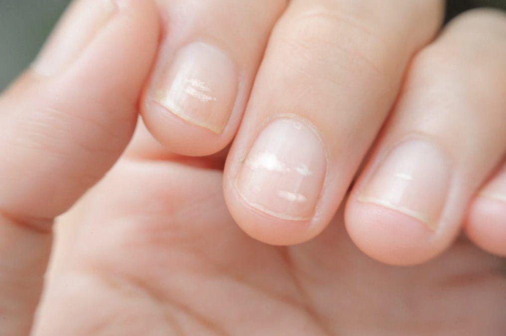 ¿Es verdad que las manchitas blancas de las uñas son por falta de calcio?