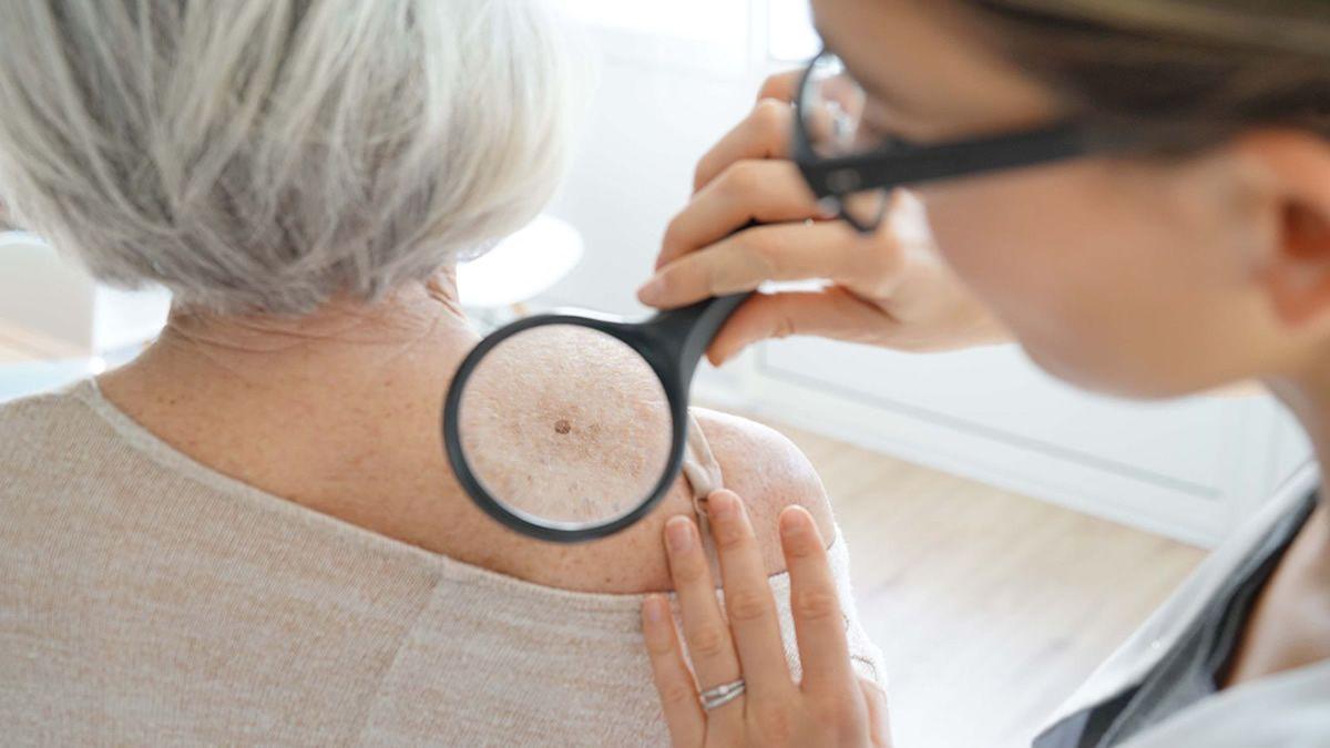 Romina Sotelo: actualmente es el tumor maligno más frecuente