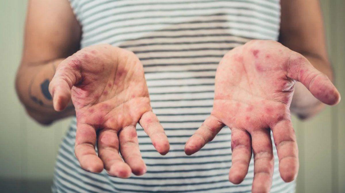 Confirman 144 casos de sarampión, una muerte y un brote activo