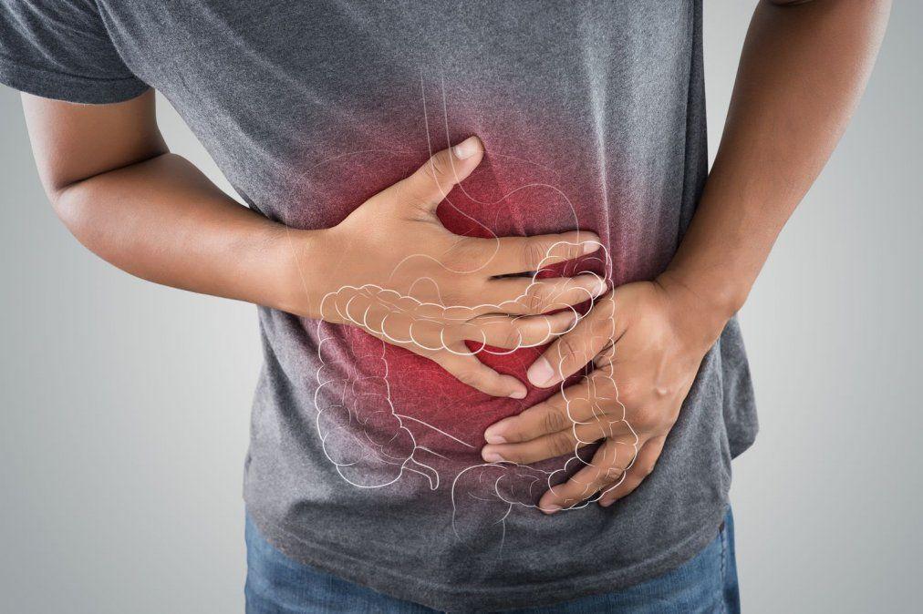 Divertículos ¿Qué son y cómo los evito?