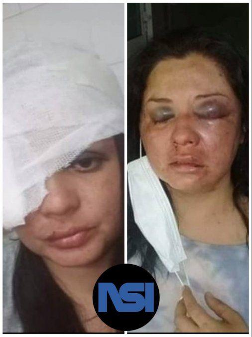 Guadalupe escapó del hospital para evitar que la mate su pareja.