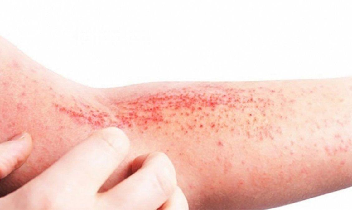 La Dermatitis Atópica afectó mucho más en este contexto de pandemia.